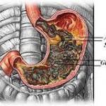 Gastrit ve bitkisel tedavisi