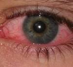 Göz kanlanması dikkate alınması gerekir(Bazı hastalıkların belirtileri olabilir)