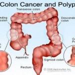Kolon Kanserini Yapan Nedir? ( Prof.Dr.Erkan Topuz)