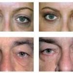 Göz altı lekeleri için(koyuluk ve morluk) K vitamini