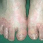 Ayak Mantarları Ve Çatlamalar İçin Öneriler(Dr.Feridun Kunak)