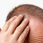 Dökülen saçlara hindistan cevizli karışım(Dr.Feridun Kunak)