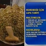 Hemoroid ve bitkisel çözümler(Dr.feridun Kunak)